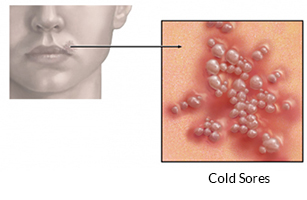 Telling The Difference Between Cold Sores And Canker Sores