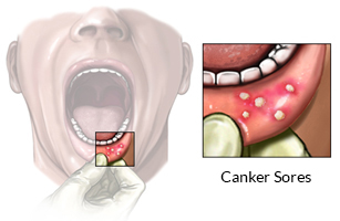 Telling the Difference Between Cold Sores and Canker Sores ...